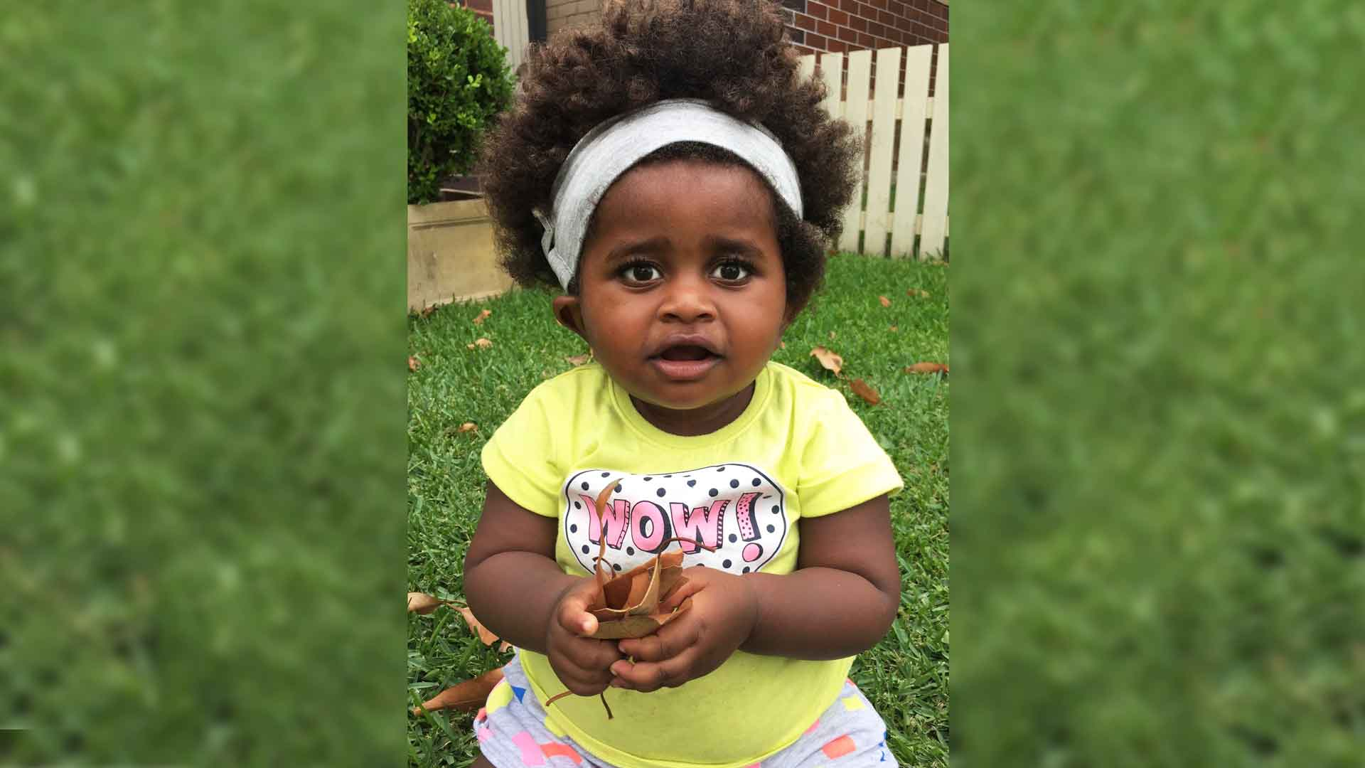 Challenges of a Cochlear Implant: Baby Mika's Story